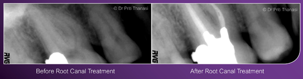 Before and after root canal treatment example 1