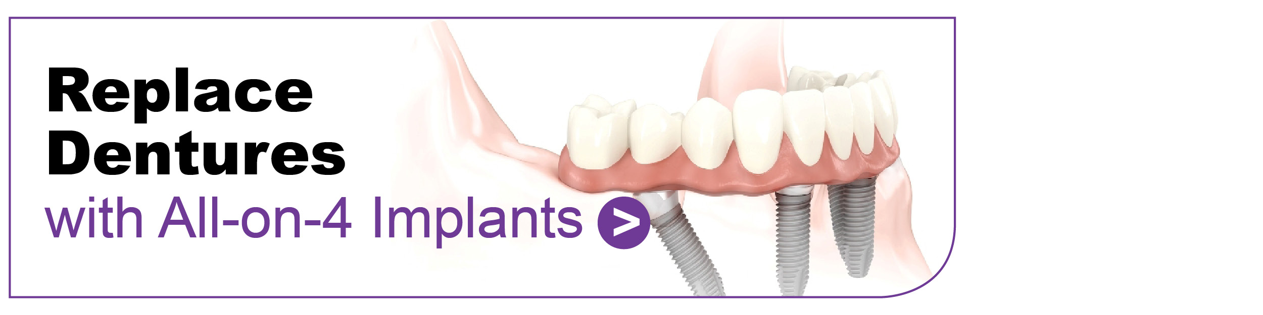 Dental Implants Hinckley